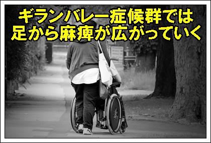 ギランバレー症候群麻痺足