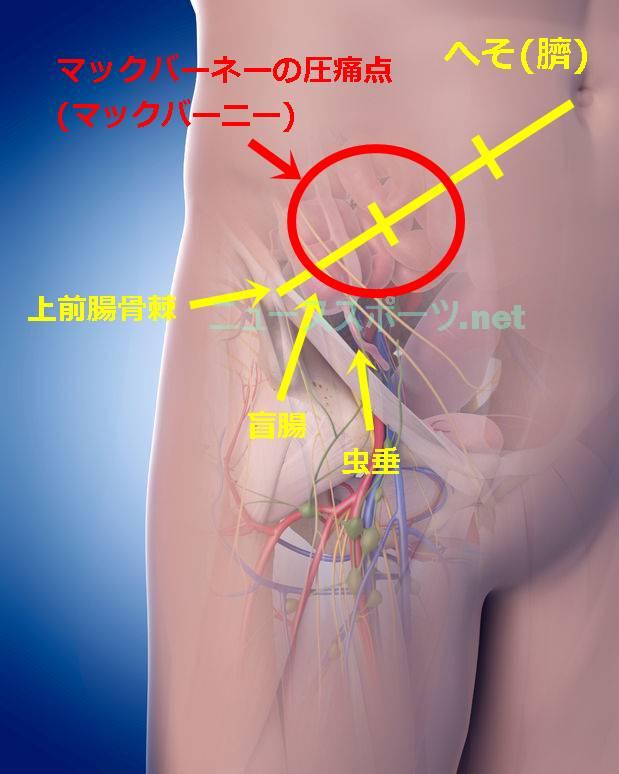 マックバーネー圧痛点・マックバーニーの圧痛点